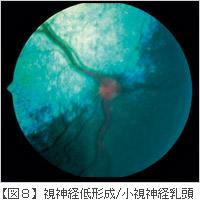 視神経の障害(陥没)